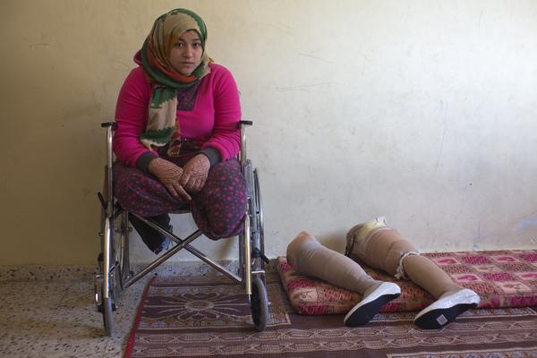 Manar Shabari, una niña palestina de 14 años, junto a sus piernas ortopédicas.